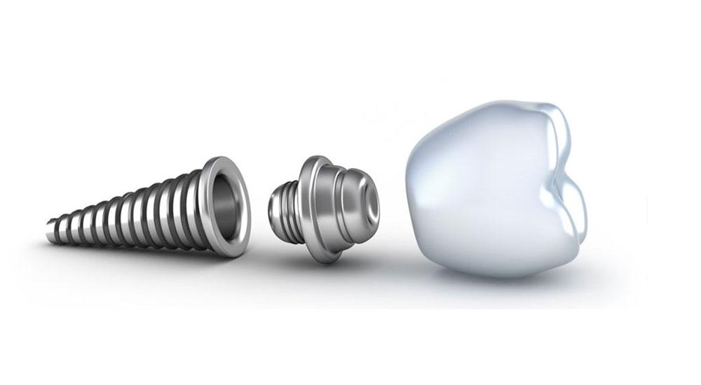 fresno dental implants