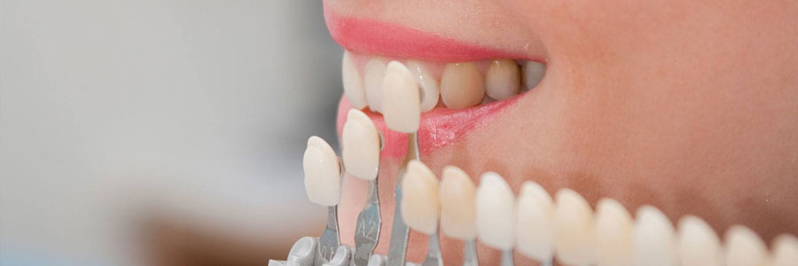fresno vancouver dental veneers